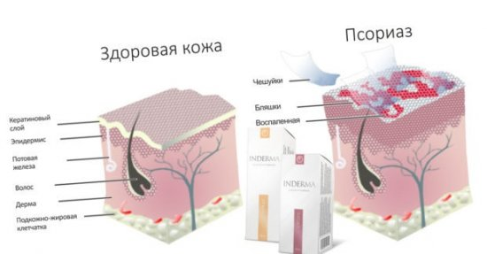 Индерма от псориаза